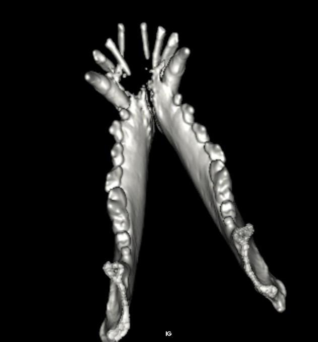 Photographie n°2 : Crédit : Examen tomodensitométrique réalisé sur le même chien (vue 2D et 3D), la tumeur de stade clinique 3 (par la taille supérieure à 4 cm) a entraîné une lyse osseuse majeure des deux branches de la mandibule. Crédit : Dr Anaïs Combes