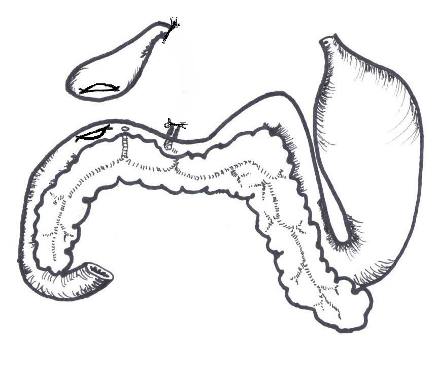 Figure 2 d'après (2,7) Anatomie simplifiée ligature et section de la partie lésée du cholédoque et abouchement des ostiums créés dans la vésicule biliaire et le duodénum.